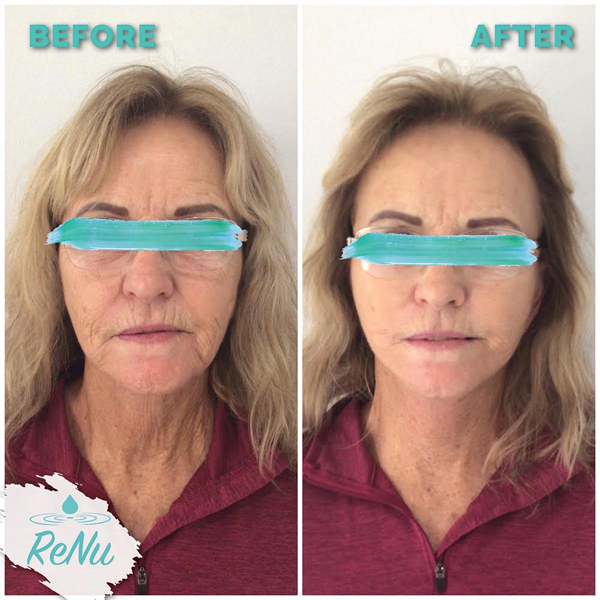 Renu Medical and Spa Cosmetic Dermatology