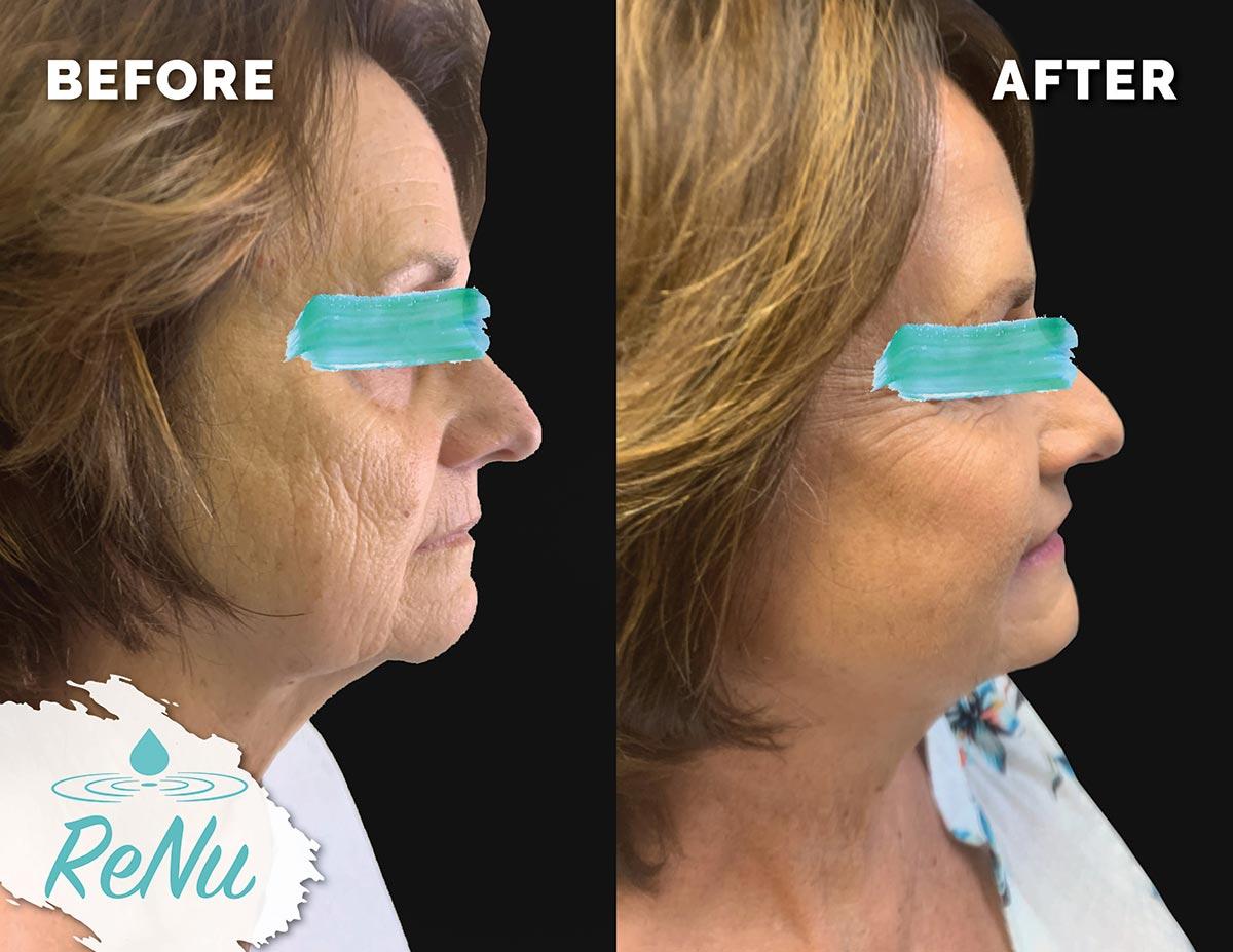 beautifill - Renu Medical and Spa Cosmetic Dermatology